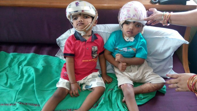 kalia of Jaga Kalia conjoined twins critical
